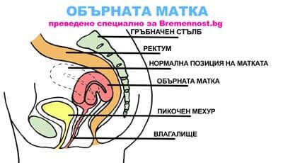 схема на обърната матка