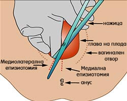какво е епизиотомия, защо и кога се прави, видове епизиотомия