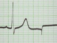 какво е кардиограма