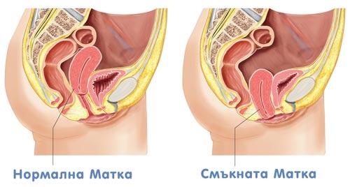 какво е смъкната матка, причини, симптоми и лечение на смъкната матка