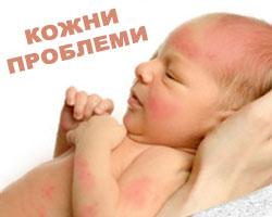 кожни проблеми при бебето - въпроси и отговори