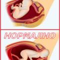 секцио или нормално раждане