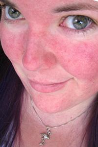 обрив по лицето
