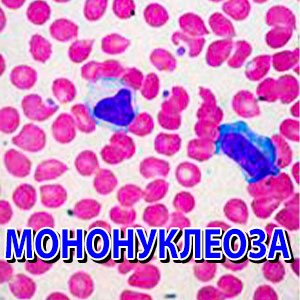 мононуклеоза