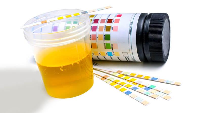 левкоцити в урината