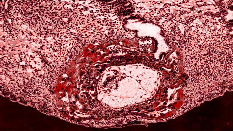 клетки на ембриона в 3 гестационна седмица