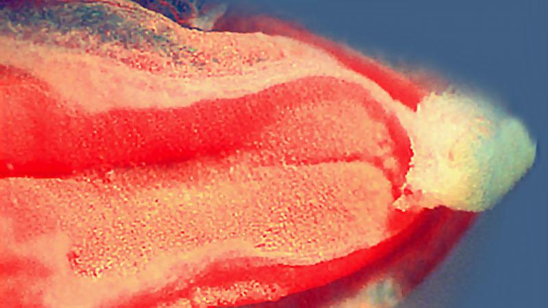 човешки ембрион с бразда по дължината си
